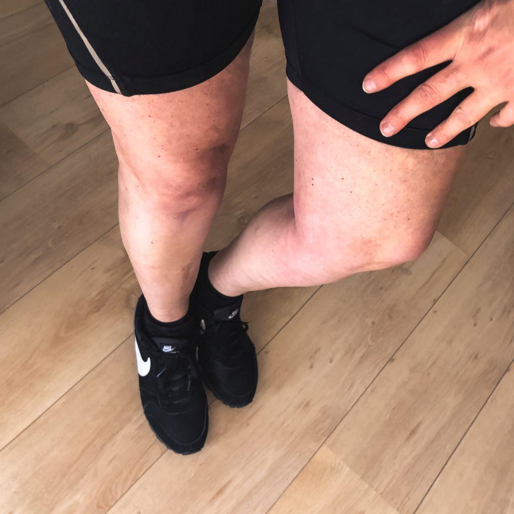 Fietsen met blote benen